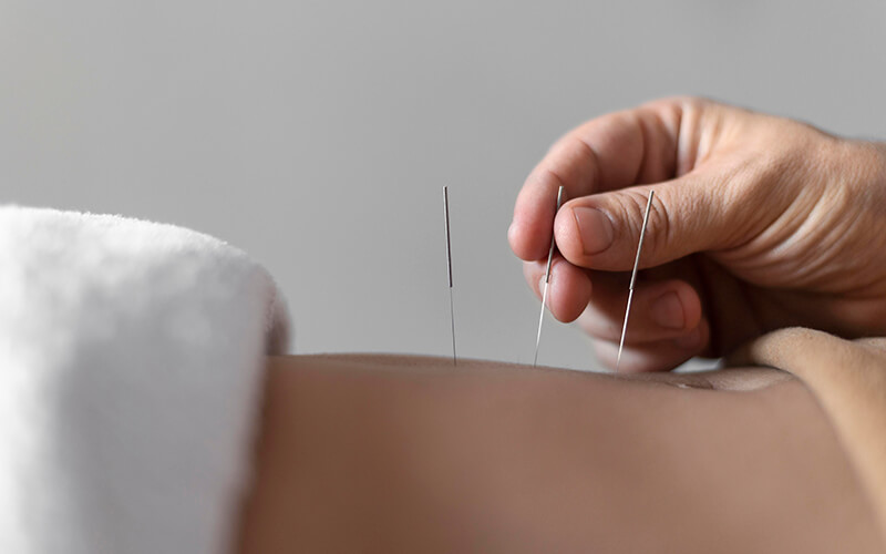 needles being placed on stomach